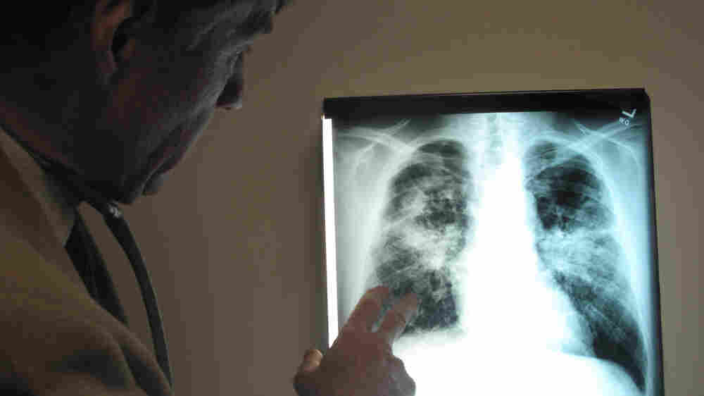 A doctor checks out a patient's lung scan that reveals coal dust in the lungs