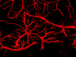Astrocytes appear star-like after they're stained.