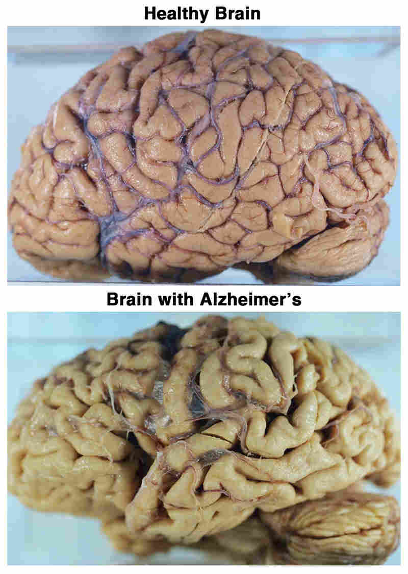 Healthy Brain vs. Brain with Alzheimer's