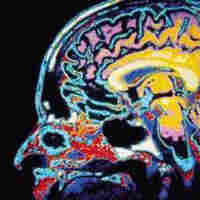 Brain Wars: The Battle To Track And Diagnose Brain Injuries