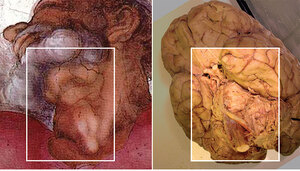 The comparison of God's neck  in Michelangelo's painting with a picture of the brain.