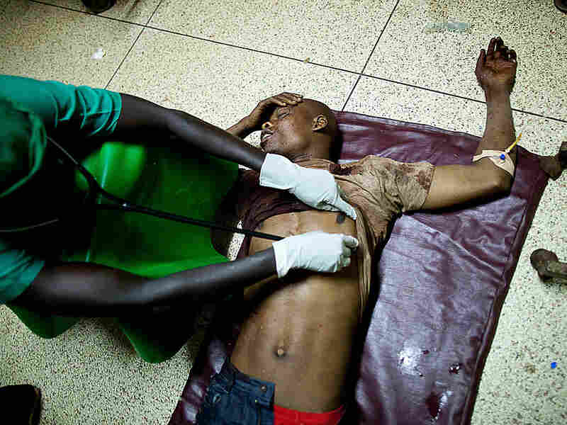 A doctor treats a victim of a bomb blast at Mulago hospital in Kampala late Sunday