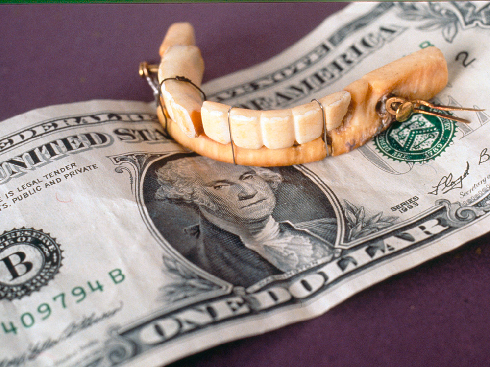 George Washington's lower dentures, perched atop a $1 bill.