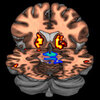 A composite PET brain scan showing low levels of dopamine receptors and high levels of dopamine.