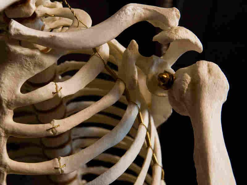Ape Shoulder