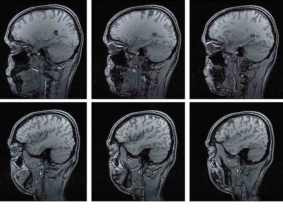 Stray abnormalities that show up in MRI scans usually don't amount to much.