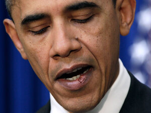 A close-up view of stitches in President Obama's lower lip, the result of an errant elbow to the mouth during a friendly basketball game in November.