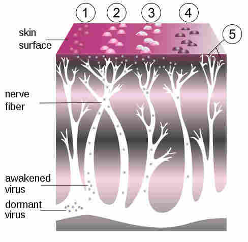 A diagram of the shingles virus.