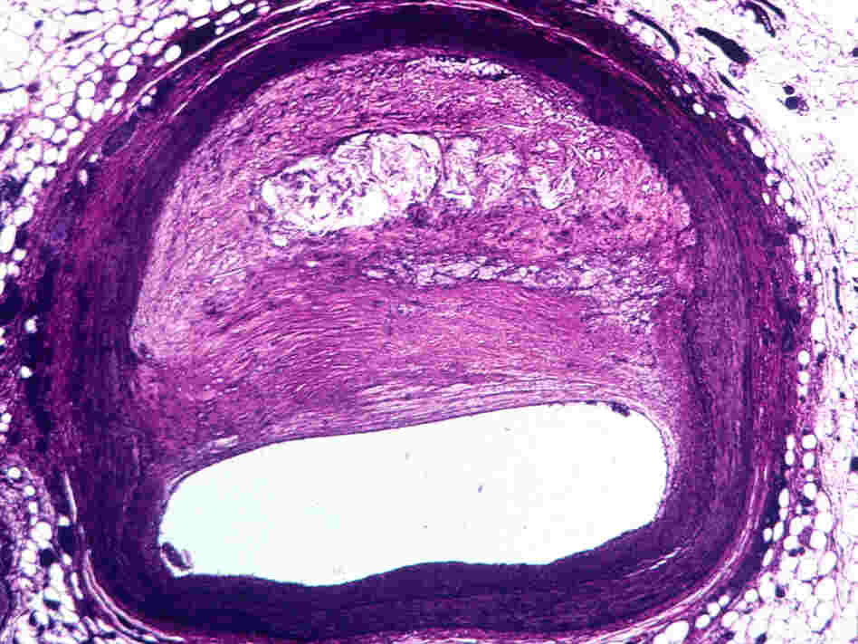 Light micrograph of atherosclerosis, the buildup of plaque on arterial walls