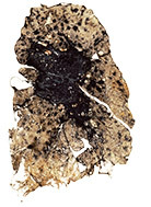 Photo of a lung in in the late stages of 'black lung'