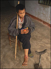 Zheng Mingzhong, 14, was hobbling down the road to Ganxi, leaning on a tall bamboo stick. He was hit by falling bricks when his house collapsed.