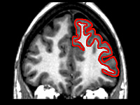 An image of the brain with the frontal lobe highlighted