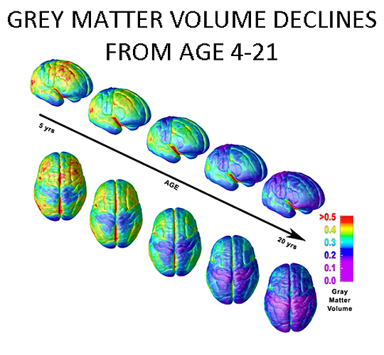A chart showing how volume of gray matter declines with age.