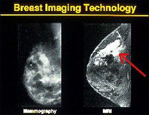 A comparison of a mammogram and an MRI scan.