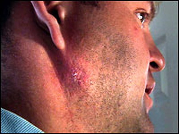 "Nelson's skin is discolored below his right ear, where he cradles the shot before he throws. He calls it a ""shot-put hickey"" and describes it as ""a callous, basically."""