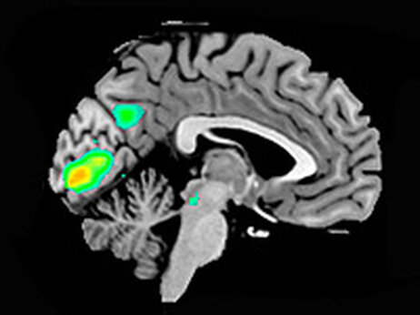 Brain scans of participants thinking about God and religion.