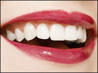 A women with white teeth and red lipstick smiles.