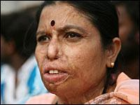 Woman with acid burns, close-up