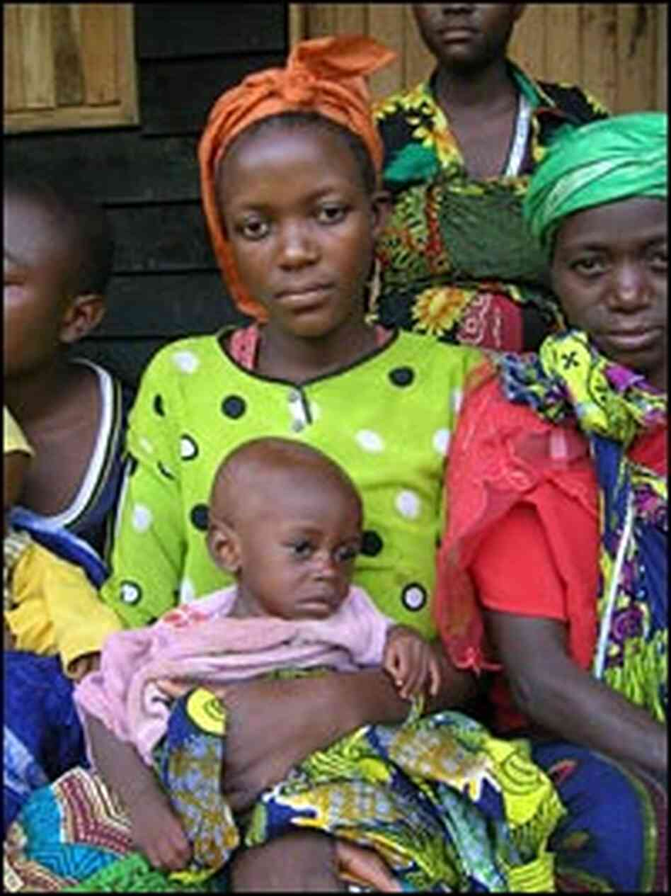 A woman holds a malnourished child in the remote village in Congo.