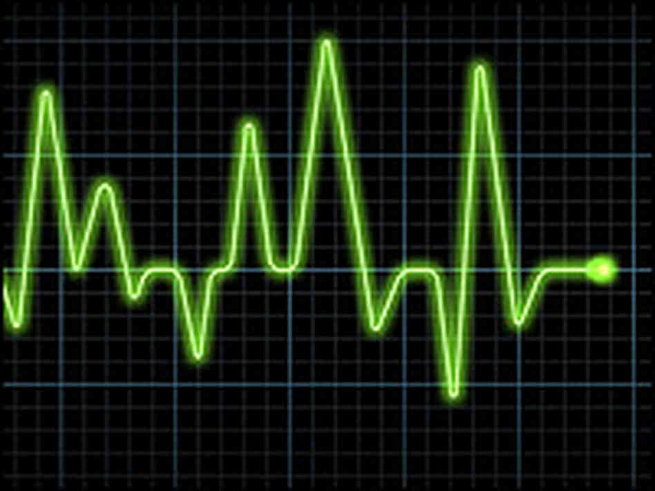 An electrocardiogram, or graphical reading of the heart's electrical activity.