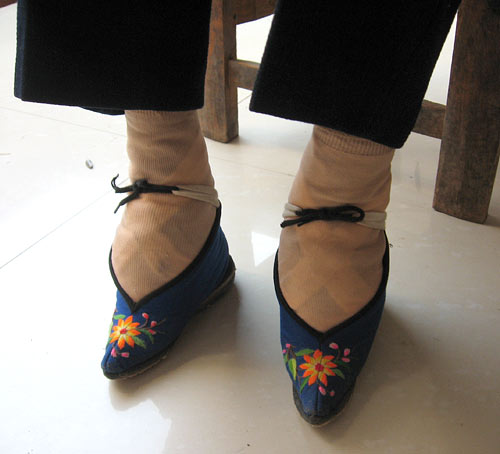 Painful Memories For China's Footbinding Survivors : NPR